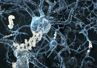 Los investigadores explican cómo tau daña las células cerebrales