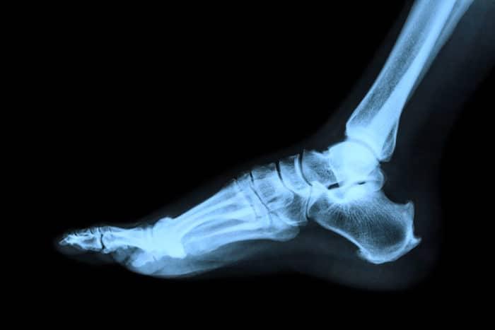 Un médico recomendará una radiografía para evaluar la extensión del daño articular
