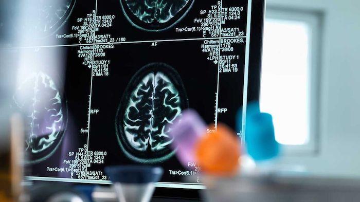 Un nuevo estudio muestra cómo el cerebro le indica al sistema inmune que active un mecanismo de EM