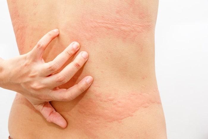 Síndrome de Sjogren: ¿qué se puede hacer sobre las urticaria y otros síntomas de la piel seca?