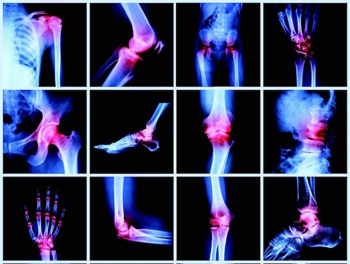La artritis reumatoide causa dolor, enrojecimiento e hinchazón en las articulaciones y una sensación de malestar general
