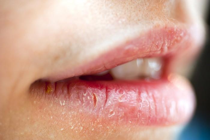 El daño nervioso causa la forma principal de SBA.