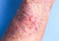 Los baños de lejía pueden ayudar a tratar el eczema cuando se usan de manera segura