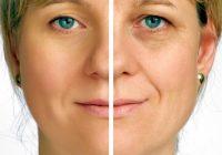 6 razones por las que puede tener arrugas prematuras y qué puede hacer al respecto