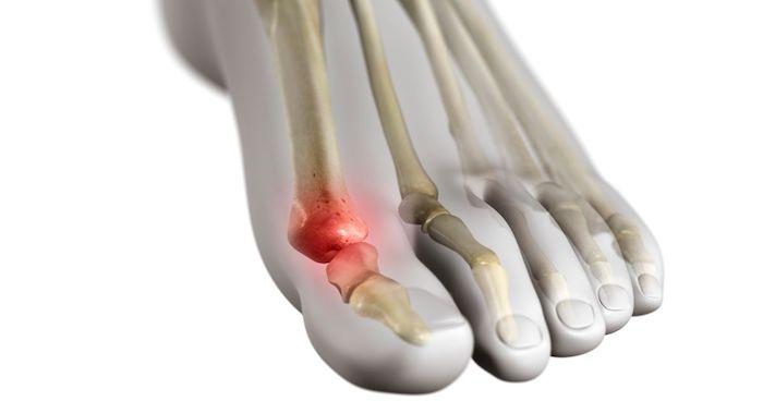 El dedo gordo puede causar dolor e hinchazón alrededor del dedo gordo