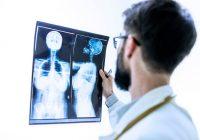 一项新的临床试验证实,免疫疗法可以帮助延长三阴性乳腺癌患者的生命