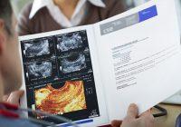Fertilidad y quistes de chocolate (endometriomas ováricos): ¿qué necesita saber sobre el embarazo?