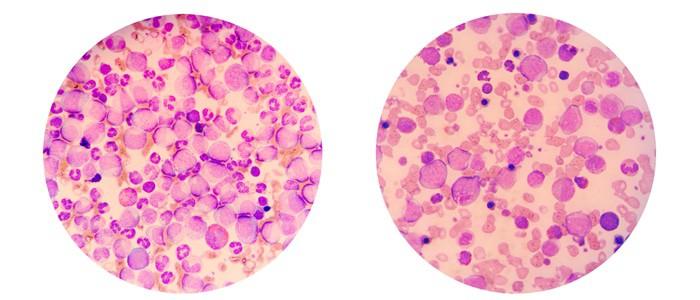Frotis de sangre que muestra neutrófilos, glóbulos blancos y leucemia