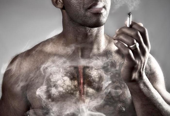 El riesgo de una persona de desarrollar EPOC puede aumentar debido al consumo excesivo de marihuana