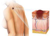 tipos más comunes de cáncer de piel