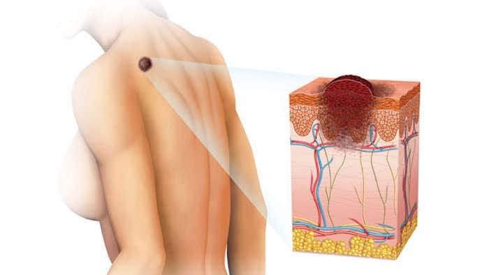 types les plus courants de cancer de la peau