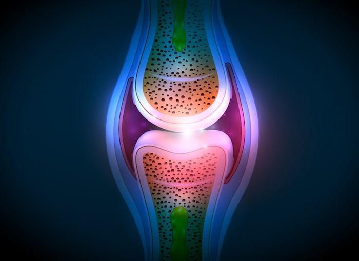 Ein Arzt kann einen Synovialflüssigkeitstest durchführen, um Gelenkerkrankungen zu diagnostizieren