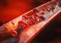 La aterosclerosis puede llevar a una variedad de problemas cardiovasculares