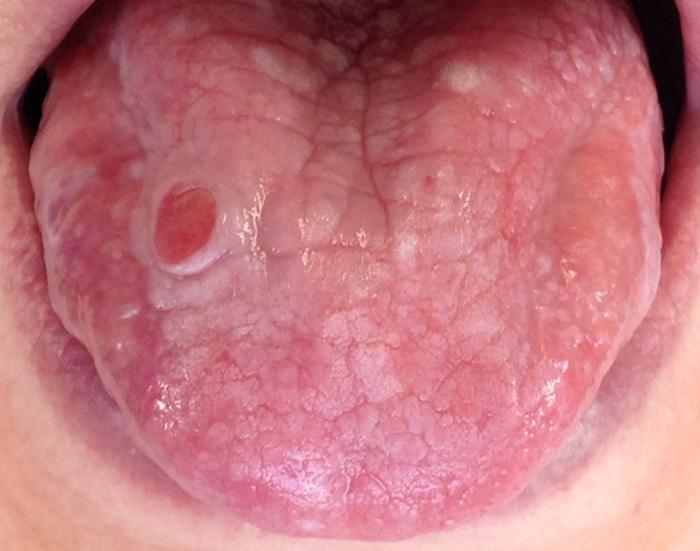 La glositis puede ser un síntoma de la enfermedad de Crohn