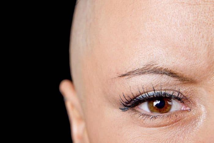 La caída del cabello es un efecto secundario común de la quimioterapia, aunque puede volver a crecer
