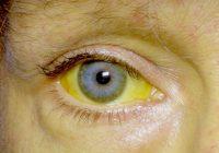 أسباب تحول عينيك إلى اللون الأصفر