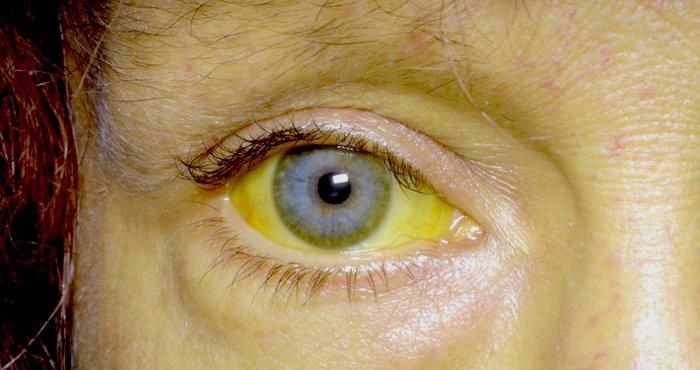 Razones por las que tus ojos pueden volverse amarillos