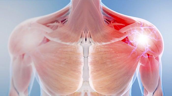 Tras lesionar su deltoides se recomienda reposo, hielo y calor