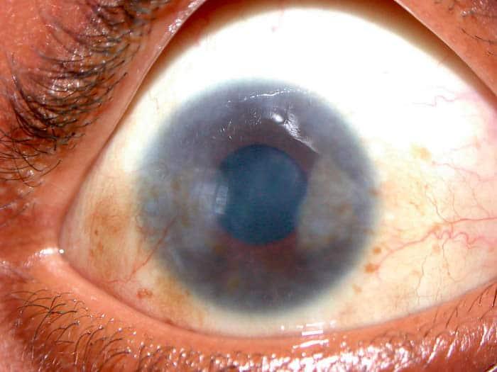 Pannus es un crecimiento anormal de tejido que puede formarse en el ojo.