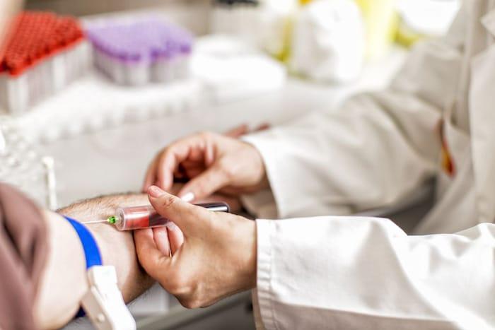 Las pruebas se realizan tomando una muestra de sangre