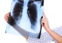 Um médico pode recomendar uma radiografia do pulmão para ajudar a diagnosticar a DPOC.
