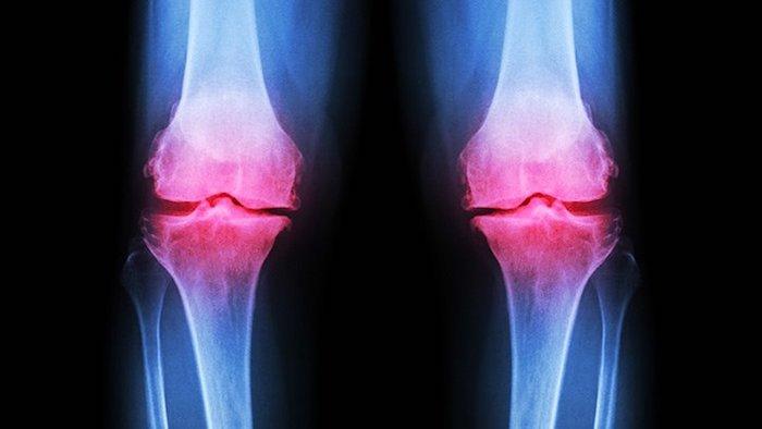 La osteoartritis a menudo afecta las articulaciones de la rodilla