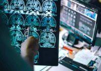 Os novos medicamentos são direcionados ao gene APOE4, que acredita-se contribuir para o desenvolvimento da doença de Alzheimer.