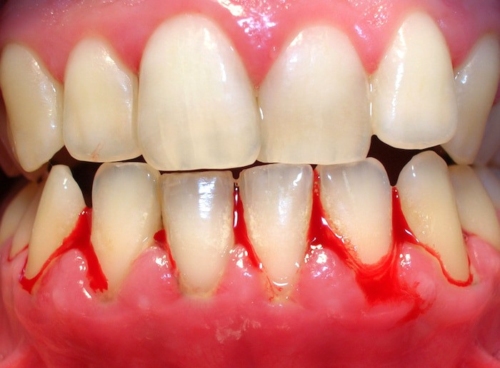 ¿Podría una deficiencia de vitaminas causar sangrado en mis encías?