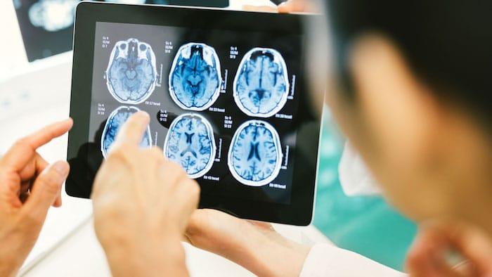 5 cosas que debe saber después de haber tenido un accidente cerebrovascular o que haya tenido un ser querido