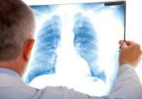 Pour limiter les risques de démence, une nouvelle étude suggère également que les personnes désireuses s'occupent de la santé de leurs poumons.