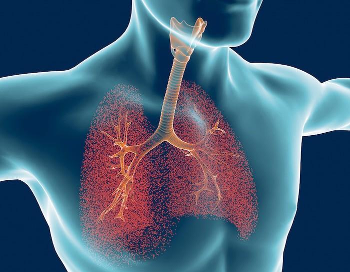Un bronchodilatateur peut ouvrir les poumons pour soulager les symptômes d'une exacerbation de la MPOC.
