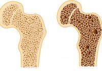 随着年龄的增长,相互连接的骨骼结构(此处显示)慢慢变得不那么健壮