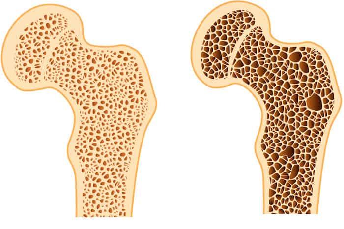 A medida que envejecemos, la estructura ósea interconectada (que se muestra aquí) lentamente se vuelve menos robusta