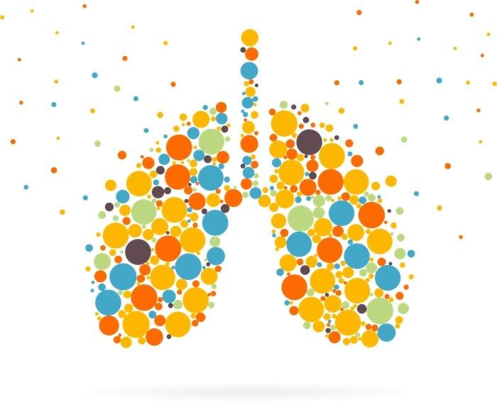 La enfermedad pulmonar intersticial inducida por fármacos afecta a más personas de lo que los expertos habían pensado