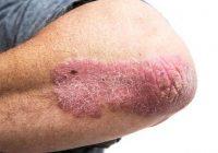 الأدوية النظامية لمرض الصدفية تعمل في جميع أنحاء الجسم لعلاج ومعالجة الأسباب الكامنة وراء هذه الحالة