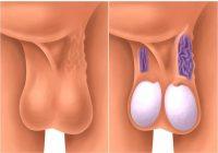 Los varicoceles afectan a alrededor del 10 al 15 por ciento de los hombres
