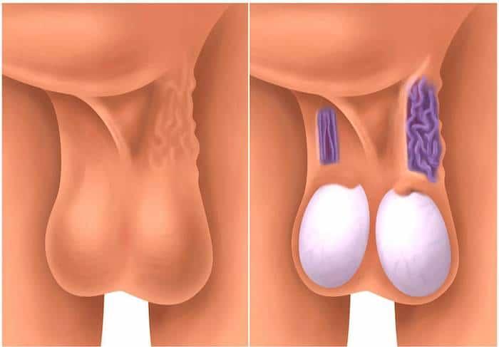 Quel est le lien entre la varicocèle et l'infertilité? - Le blog ...
