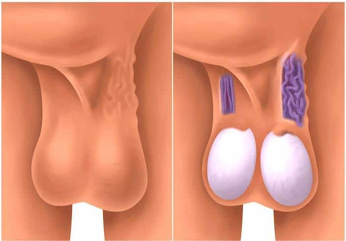 Varikozelen betreffen etwa 10 bis 15 Prozent der Männer