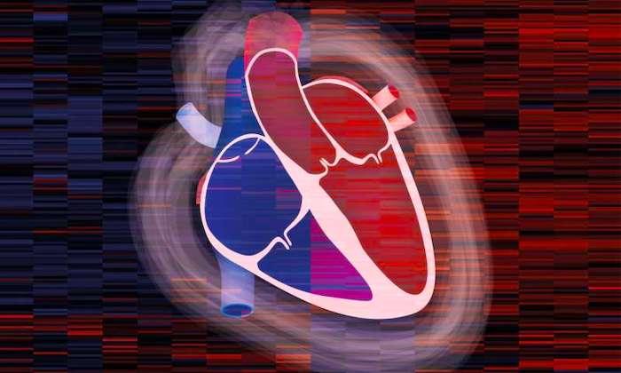 Obstruktive hypertrophe Kardiomyopathie: Ursachen, Symptome und Behandlung