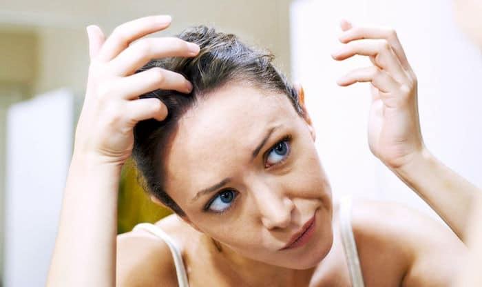 Lo que hay que saber sobre la psoriasis del cuero cabelludo