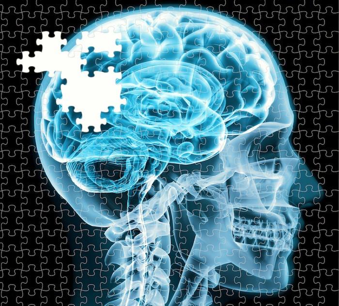 يمكن لبروتين يسمى netrin أن يزيد من التعلم والذاكرة عن طريق تقوية الروابط العصبية في الدماغ البالغ