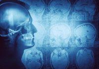 新研究发现大脑尺寸与脑癌风险之间存在联系