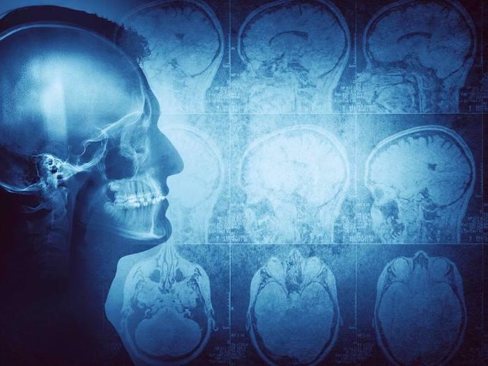 Neue Forschungsergebnisse zeigen einen Zusammenhang zwischen der Größe des Gehirns und dem Krebsrisiko des Gehirns