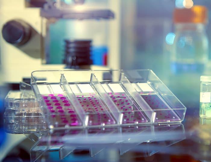 Una nueva investigación encuentra una manera de abordar las células cancerosas resistentes al tratamiento