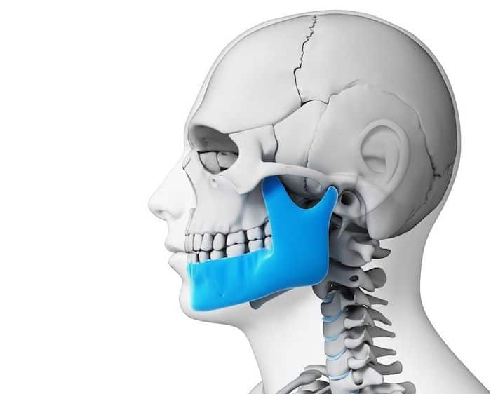 كسر أو خلع الفك