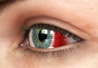 ما الذي يسبب بقعة حمراء في العين؟
