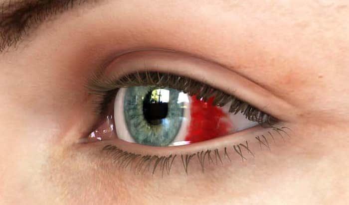 ¿Qué causa una mancha roja en el ojo?