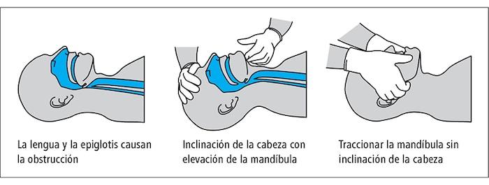 Sauvetage de réanimation cardiopulmonaire