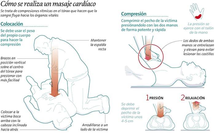 compressions thoraciques