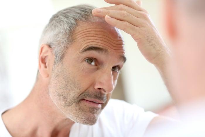 Causas e tratamentos para queda de cabelo